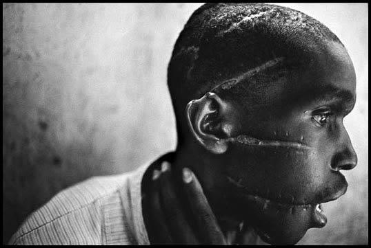rwanda_genocide_survivor
